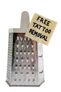 free tatoo removal